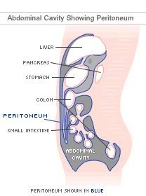 peritoneal-mesothelioma.jpg