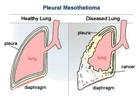 pleural-mesothelioma.jpg